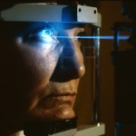 How to Get Laser Eye Surgery in London