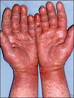 Latex Allergy | AAFA.org