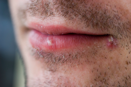 Treating Cold Sores Naturally at Home