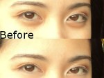How to get rid of eye balls
