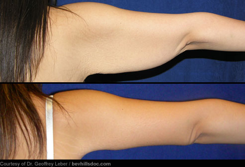ARM-LIFT-SURGERY-BRACHIOPLASTY