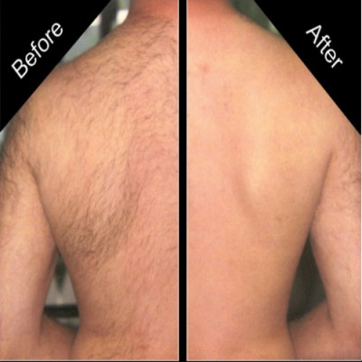 Gettong Rid of Back Hairs