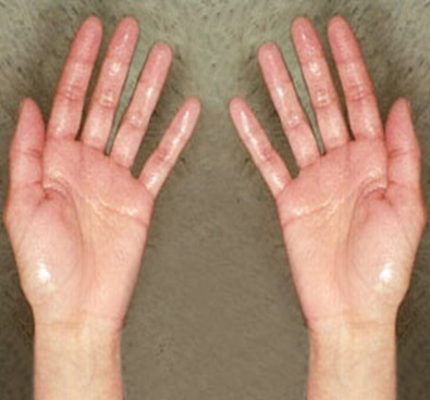 how to get rid of clammy hands
