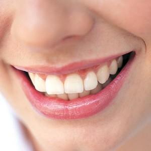Naturally White Teeth