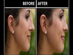Get Smaller Nose without Surgery