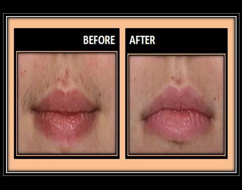 Wax an Upper Lip