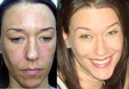 How To Conceal Melasma
