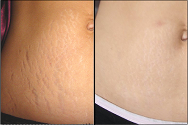 stretch marks with makeup