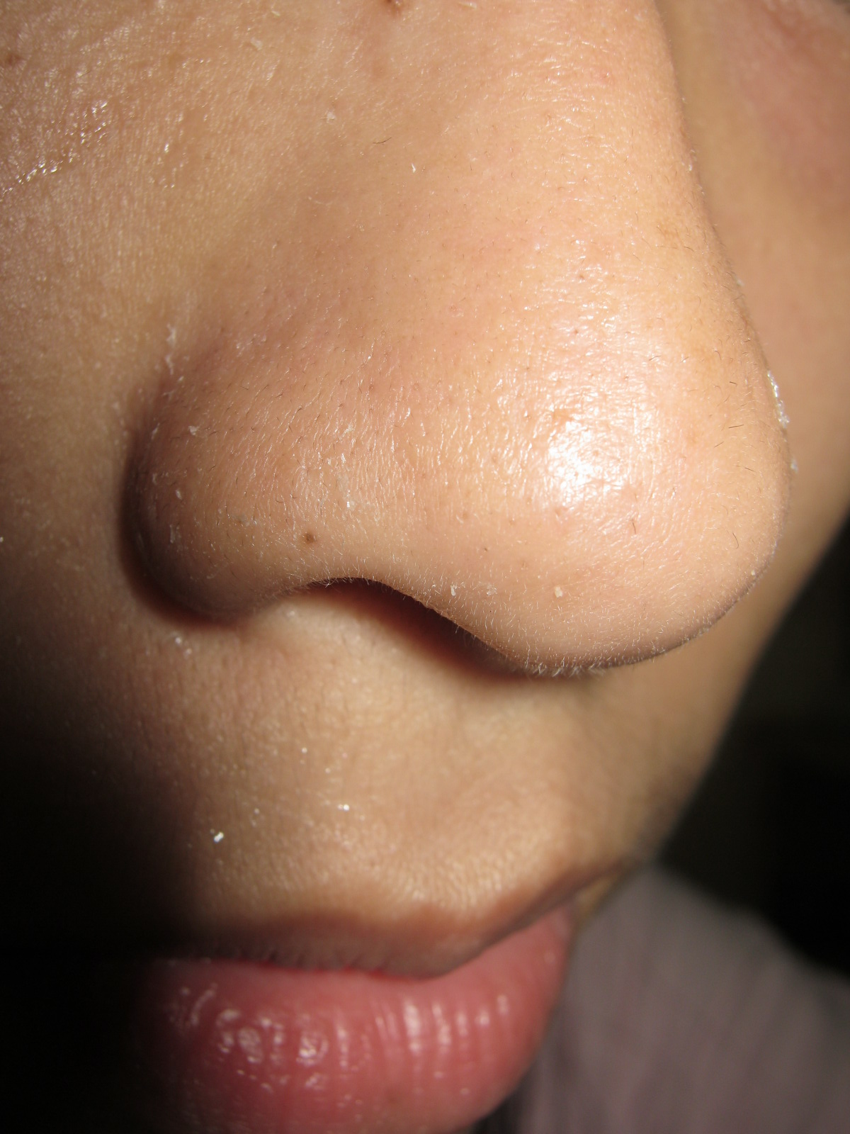 Deep Clean Pores on Nose