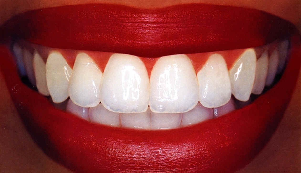 Get Rid of Yellow Stains on Teeth