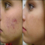 Natural Skin Treatments for Acne Scars