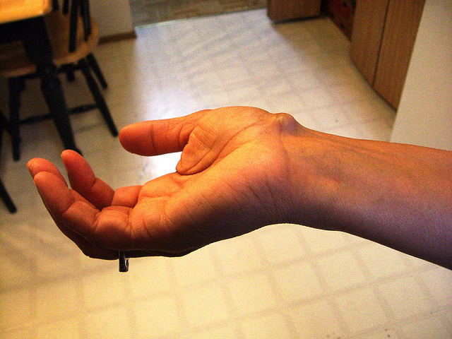 Getting Rid Of Ganglion Cyst