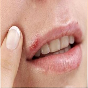How to Heal Cold Sore on Lips