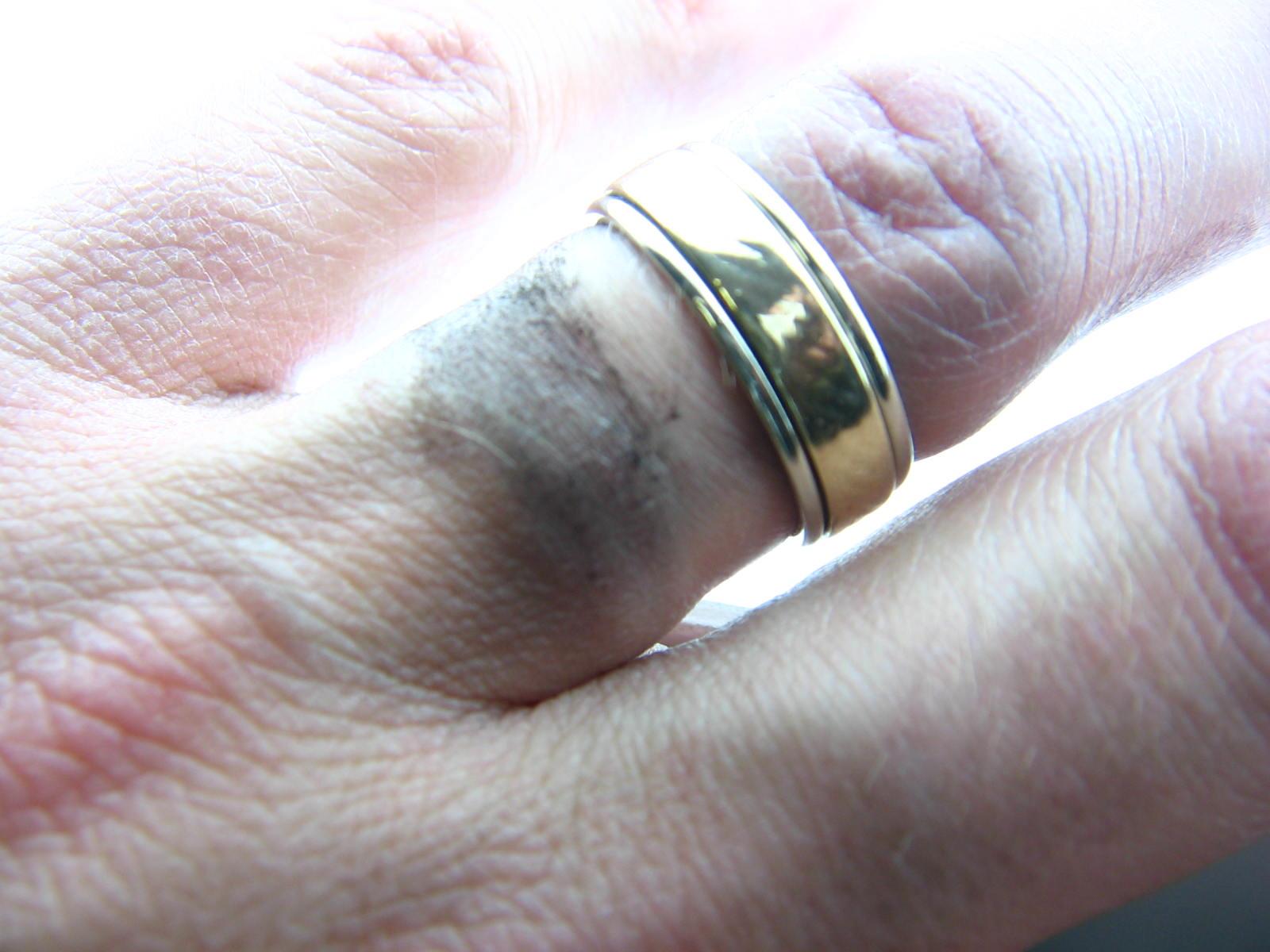 Jewellery Discolouring Skin