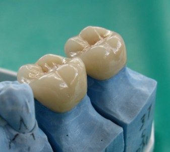 How to Make a Dental Crown at Home