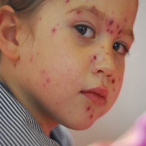 Remove Chickenpox Scars From Face