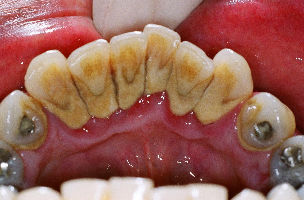 Remove Tartar from Teeth