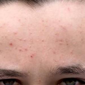 Whiteheads on Forehead