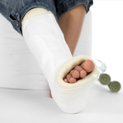 How to Treat a Broken Bone at Home