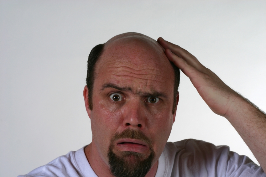 Use Herbal Remedies for Hair Loss