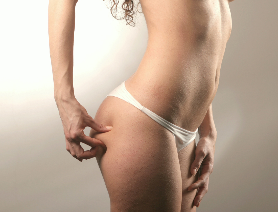 Lady with cellulite