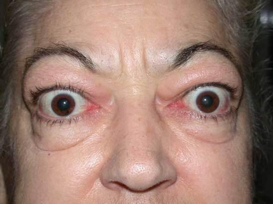 Graves Eye