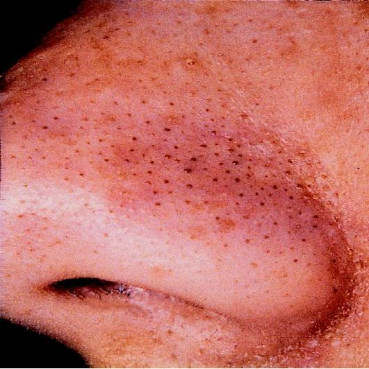 Tips to Get Rid Of Blackheads with Omega 3