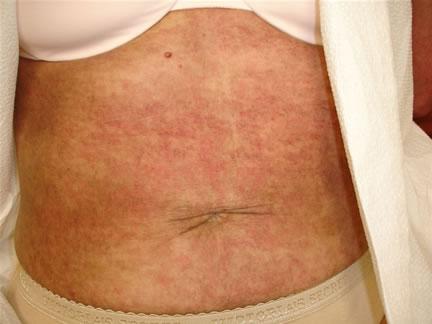 How to Identify Myositis