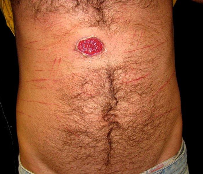 Syphilis Chancre