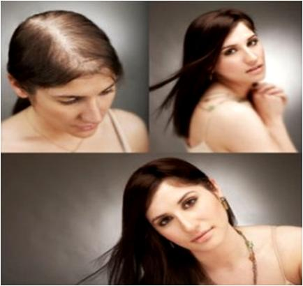 Regrow Hair Follicles