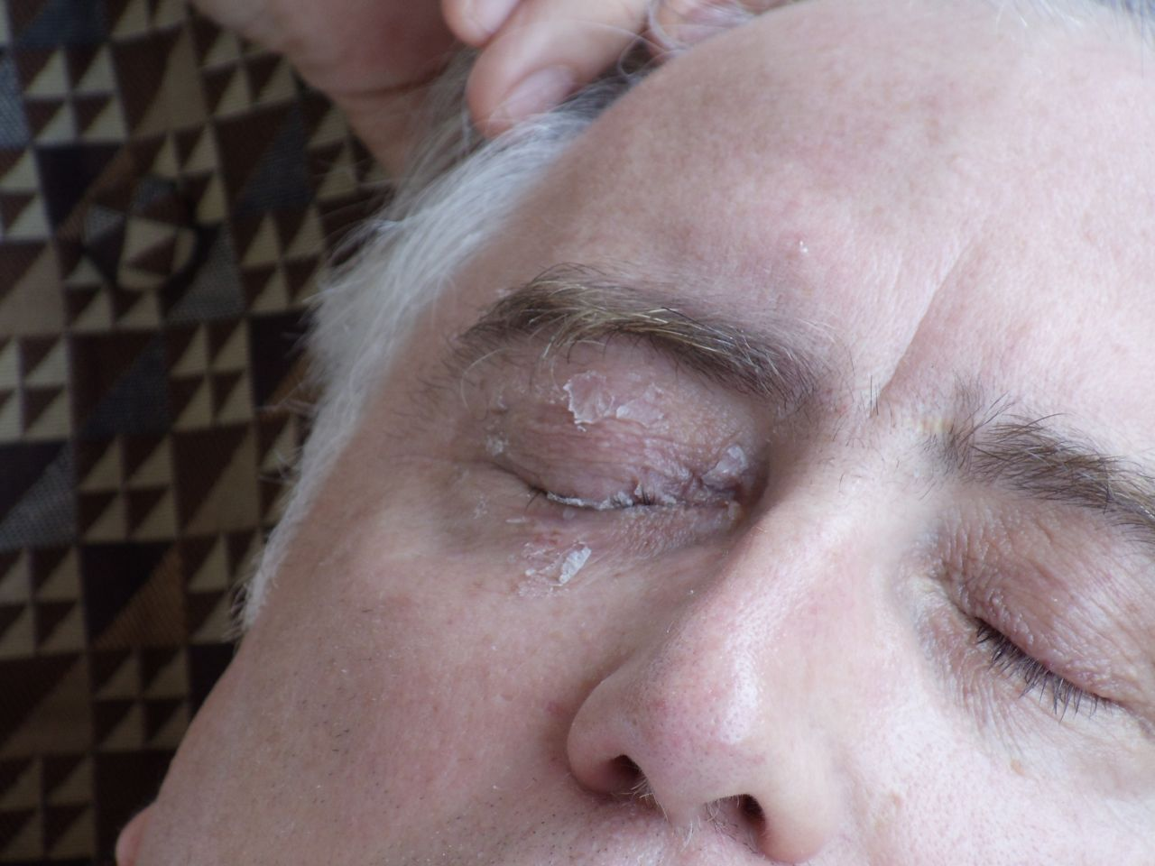 how to remove super glue from eyes