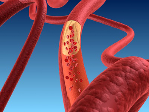 Tips about How to Reverse Coagulopathy