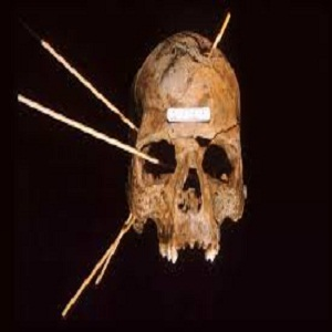 Forensic Anthropology Used For