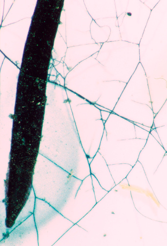 Between Fungal and Plant Cells