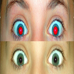 Get Rid of Red-Eye in Photographs