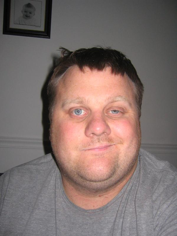 A man suffering from Bell's Palsy