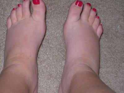 How to Reduce Edema Quickly After Pregnancy