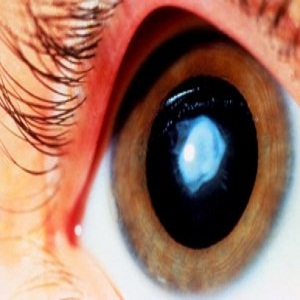 Top 10 Ways to Take Care of Your Eyes