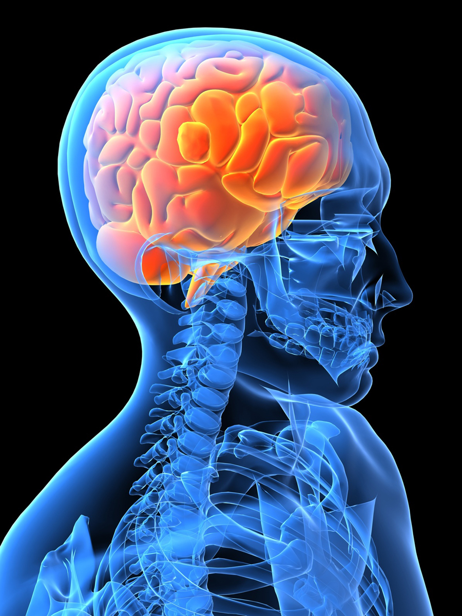 What is a Massive Stroke Caused By