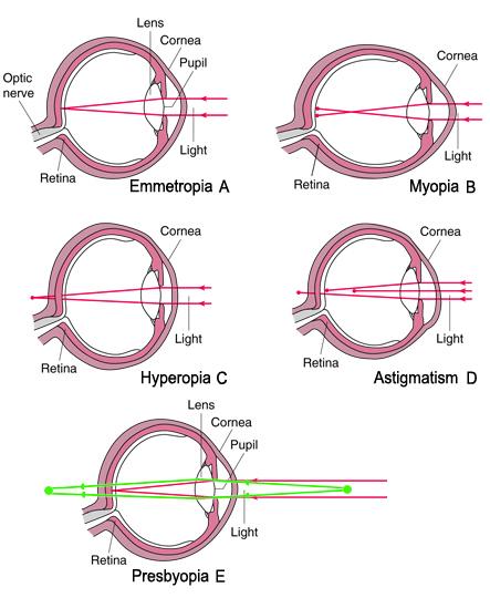 Myopia, Hyperopia, Presbyopia, & Astigmatism