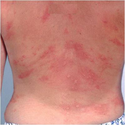 Overview of Common Skin Diseases and Treatment - Verywell