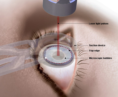 Handle Lasik Surgery