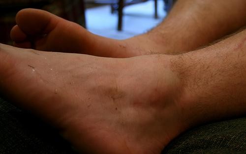 Natural Remedies for Swollen Ankles