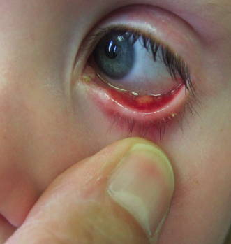 Stye in the Eye