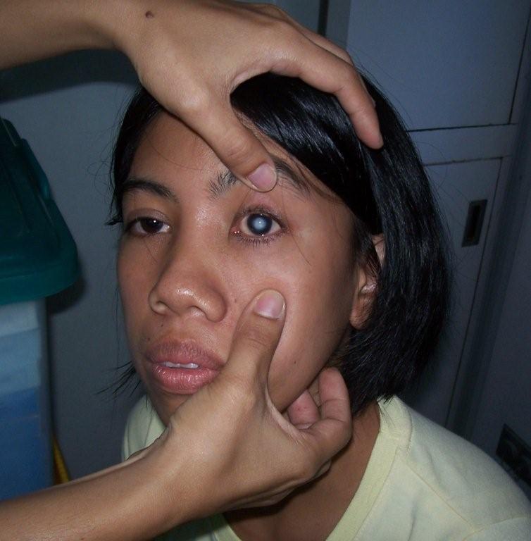 Eye Cataracts