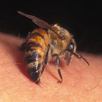Wasp Sting