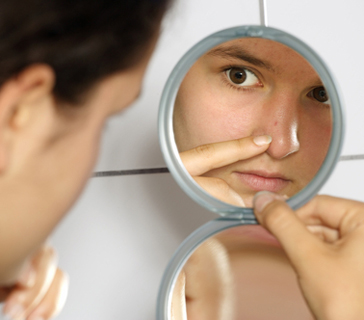 How to Remove Blackheads from Nose Fast at Home