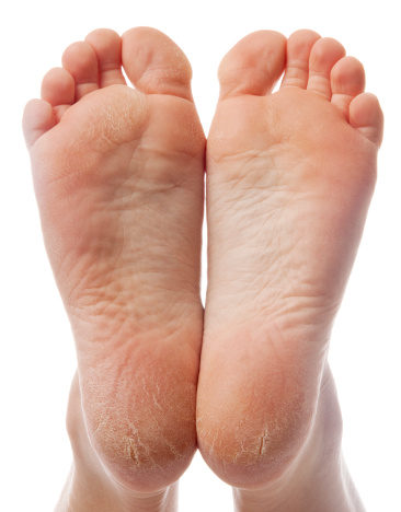 How to Soothe Dry Cracked Feet