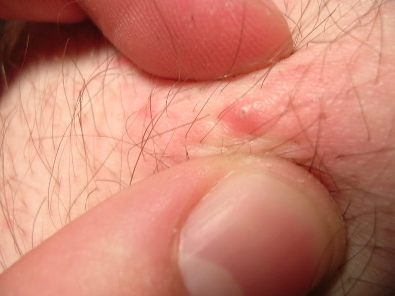 Ingrown Armpit Hair